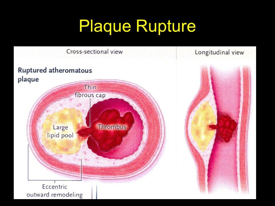 Plaque Rupture