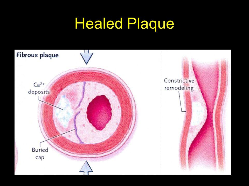 Healed Plaque