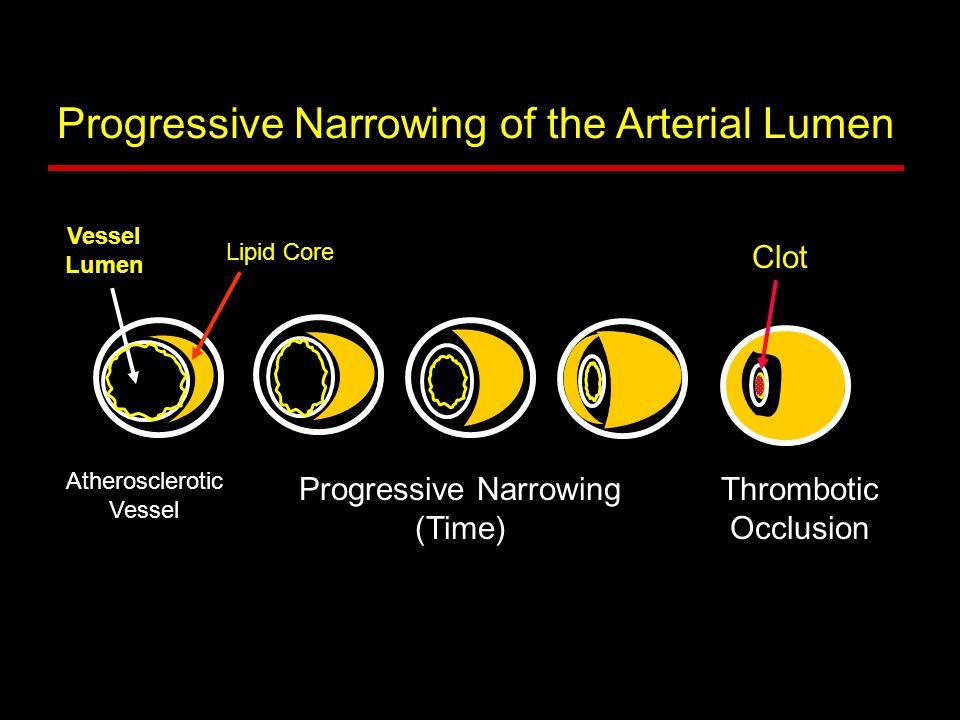 Atherosclerotic Vessel Thrombotic Occlusion Progressive Narrowing of the Arterial Lumen Lipid Core Vessel Lumen Progressive Narrowing (Time) Clot