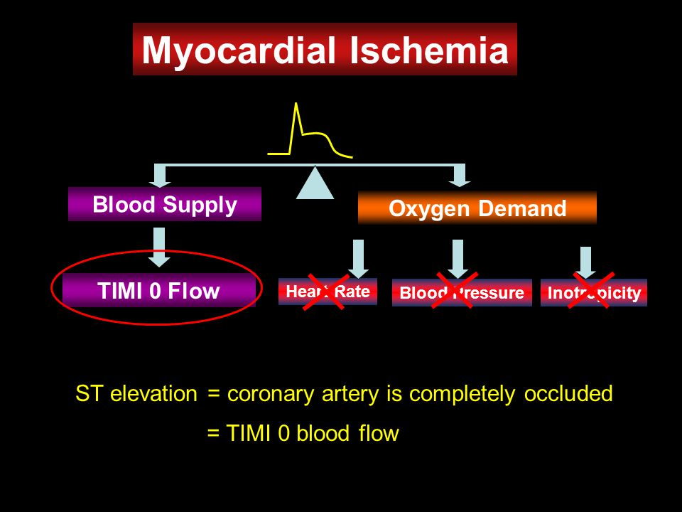 Myocardial Ischemia Heart Rate Oxygen Demand Blood Supply Blood PressureInotropicity ST elevation = coronary artery is completely occluded TIMI 0 Flow