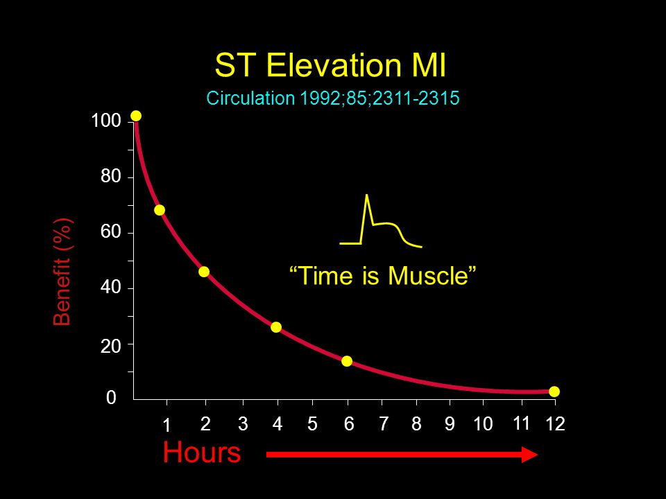 """ST Elevation MI Benefit (%) 0 40 60 80 100 Hours 20 1 2345678 """"Time is Muscle"""" 910 11 12 Circulation 1992;85;2311-2315"""