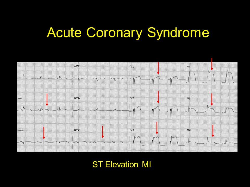 Acute Coronary Syndrome ST Elevation MI