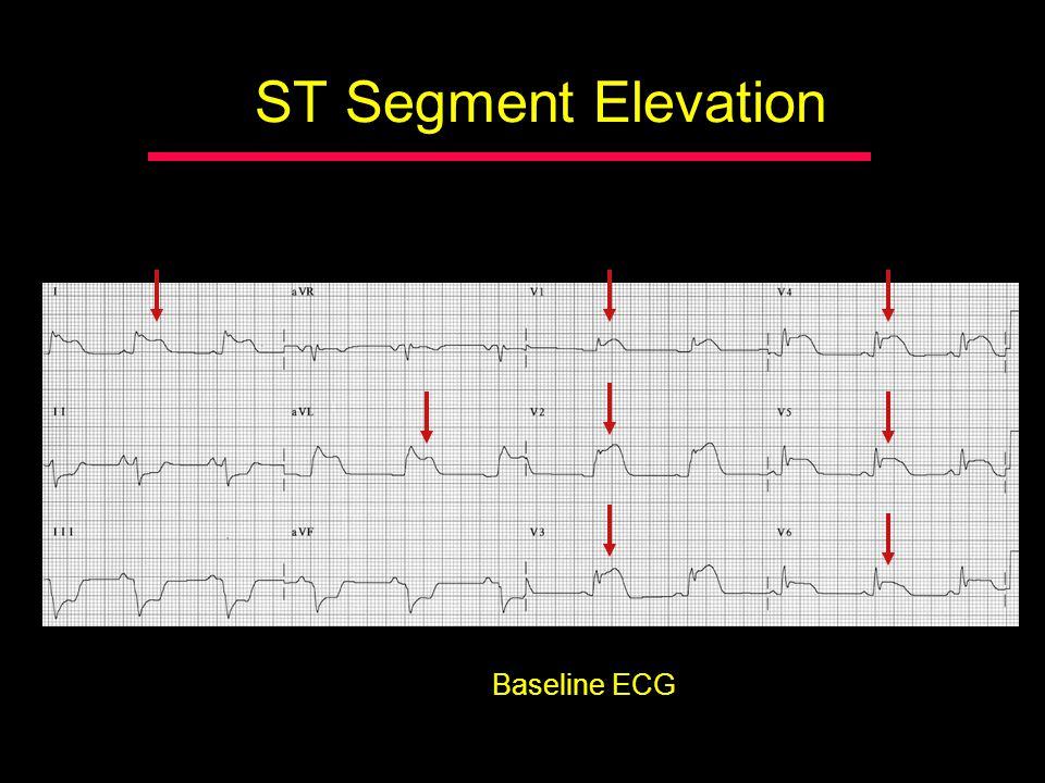 ST Segment Elevation Baseline ECG