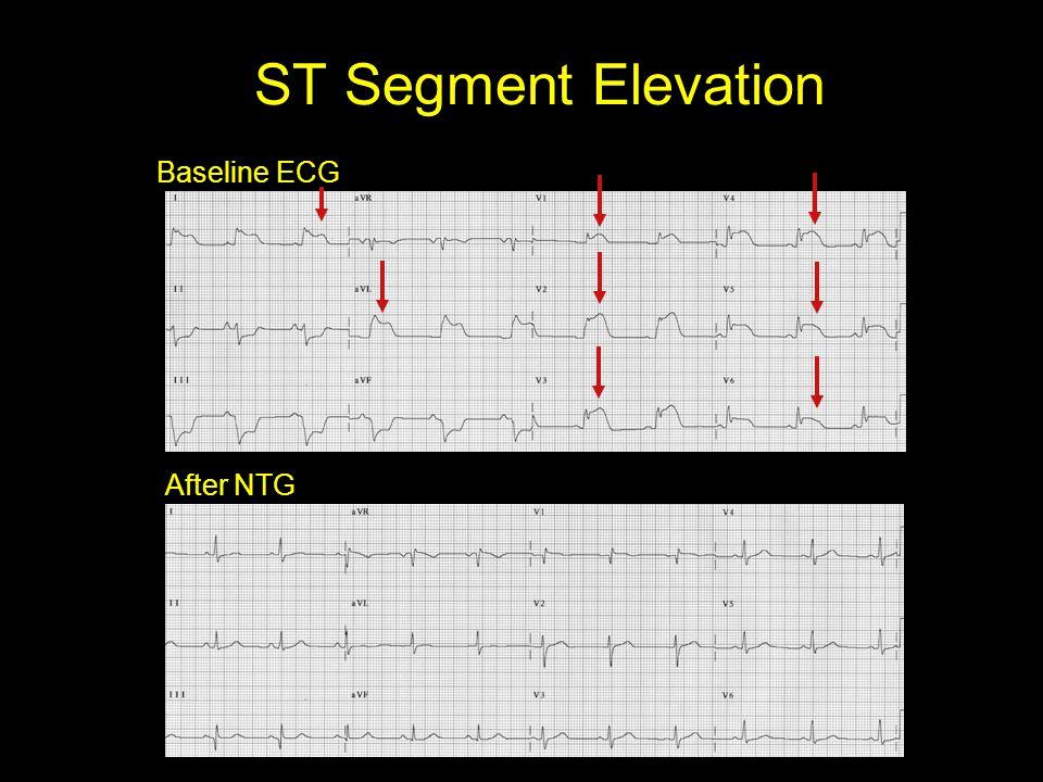 ST Segment Elevation Baseline ECG After NTG