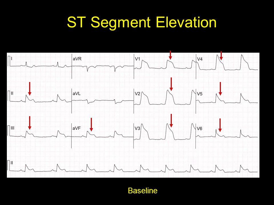 ST Segment Elevation Baseline