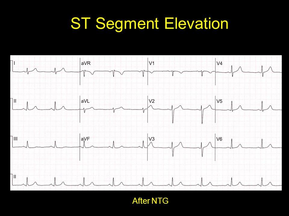 ST Segment Elevation After NTG