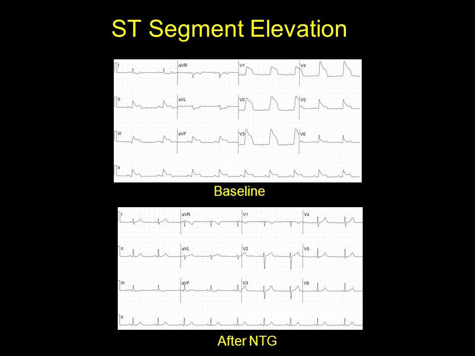 ST Segment Elevation After NTG Baseline