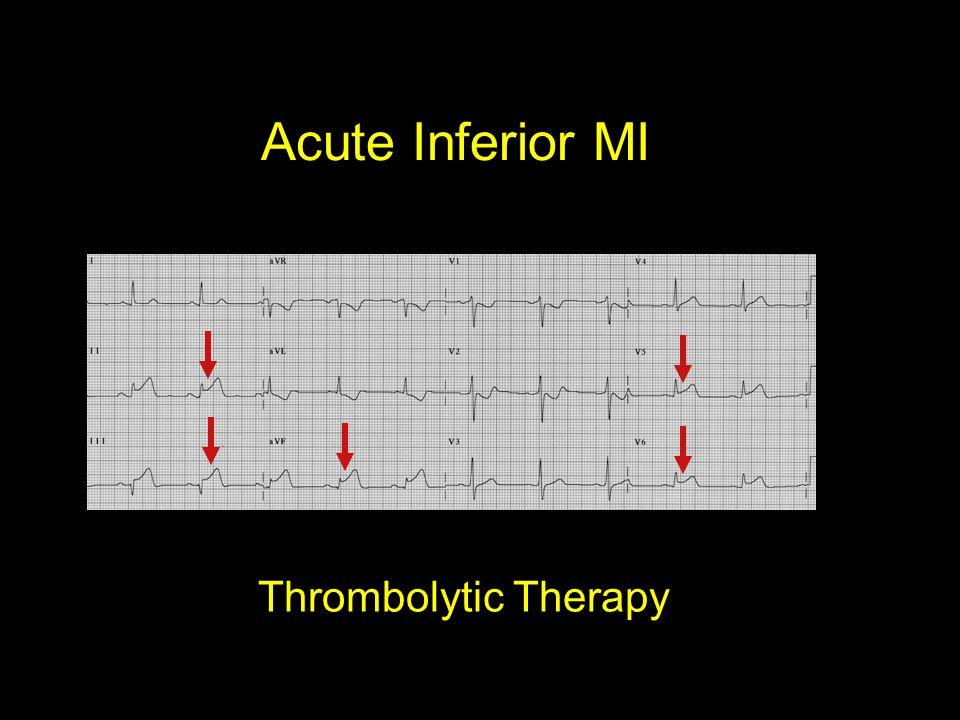 Acute Inferior MI Thrombolytic Therapy