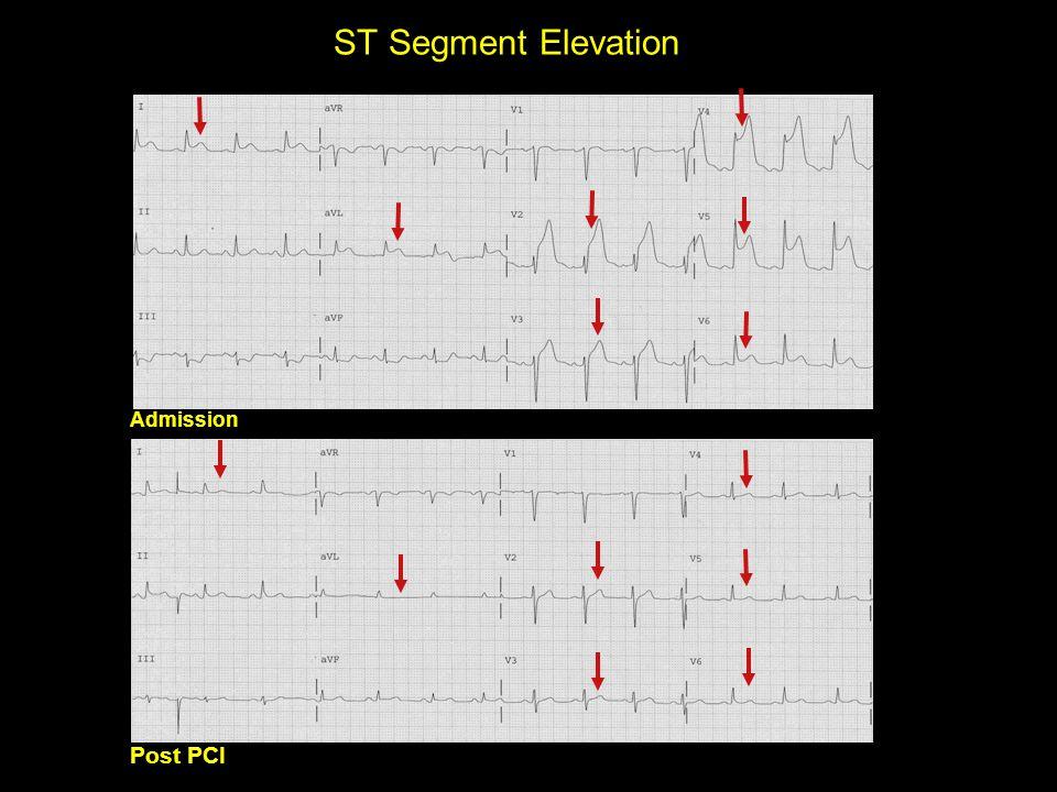 ST Segment Elevation Admission Post PCI