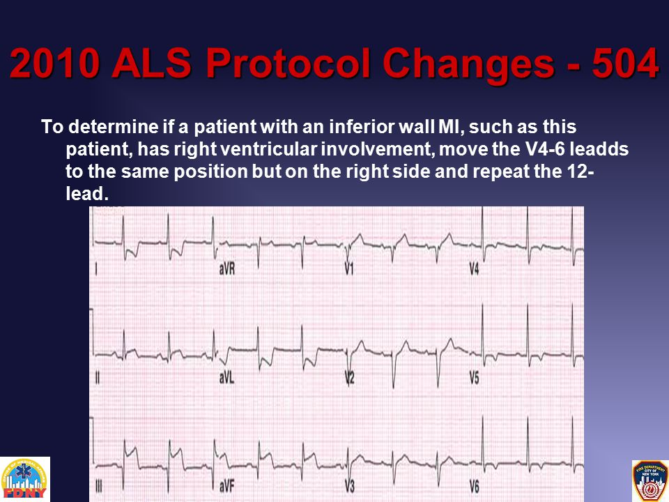 2010 ALS Protocol Changes - 504 To determine if a patient with an inferior wall MI, such as this patient, has right ventricular involvement, move the V4-6 leadds to the same position but on the right side and repeat the 12- lead.