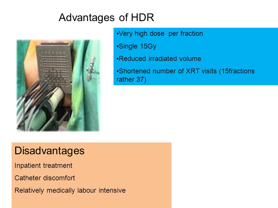 Very high dose per fraction Single 15Gy Reduced irradiated volume Shortened number of XRT visits (15fractions rather 37) Disadvantages Inpatient treatment Catheter discomfort Relatively medically labour intensive Advantages of HDR