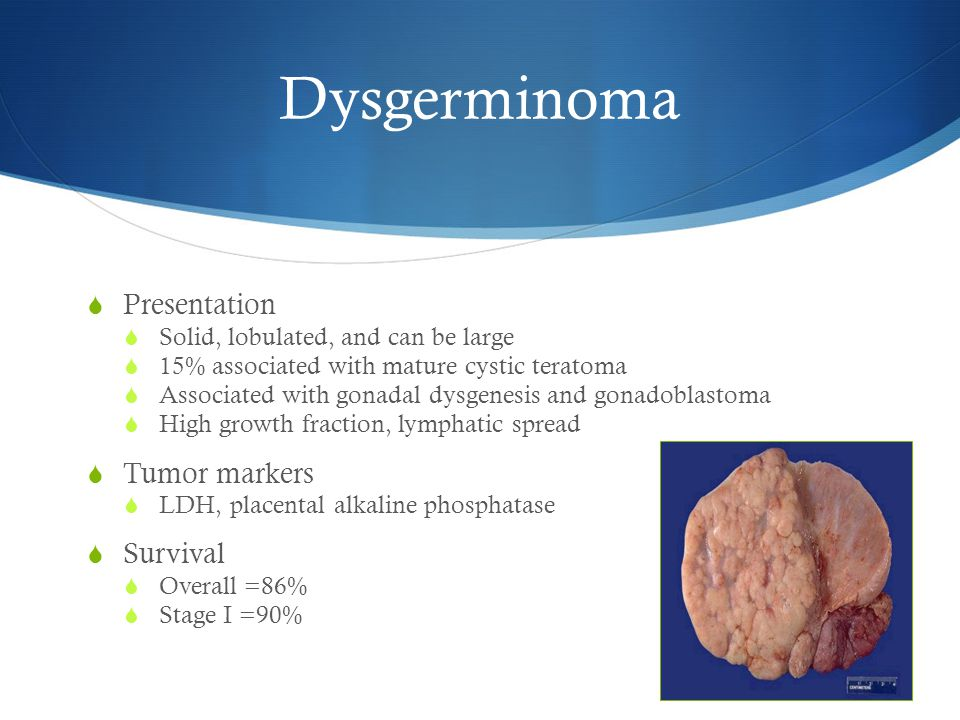  Presentation  Solid, lobulated, and can be large  15% associated with mature cystic teratoma  Associated with gonadal dysgenesis and gonadoblastoma  High growth fraction, lymphatic spread  Tumor markers  LDH, placental alkaline phosphatase  Survival  Overall =86%  Stage I =90%