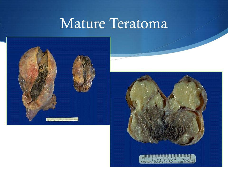 Mature Teratoma