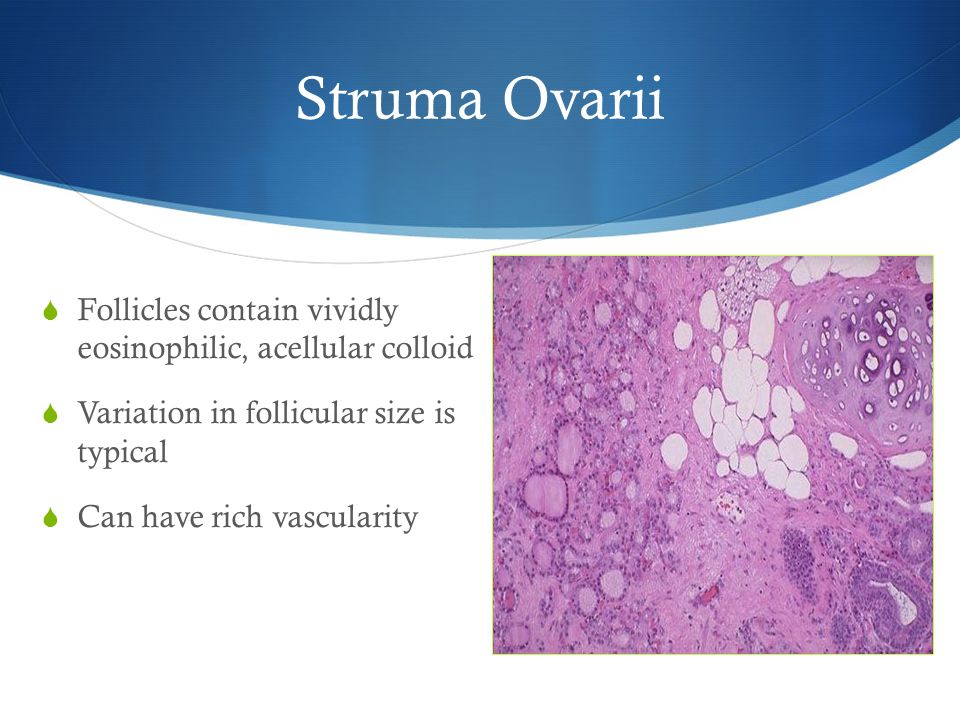 Struma Ovarii  Follicles contain vividly eosinophilic, acellular colloid  Variation in follicular size is typical  Can have rich vascularity
