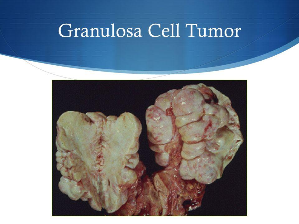 Granulosa Cell Tumor