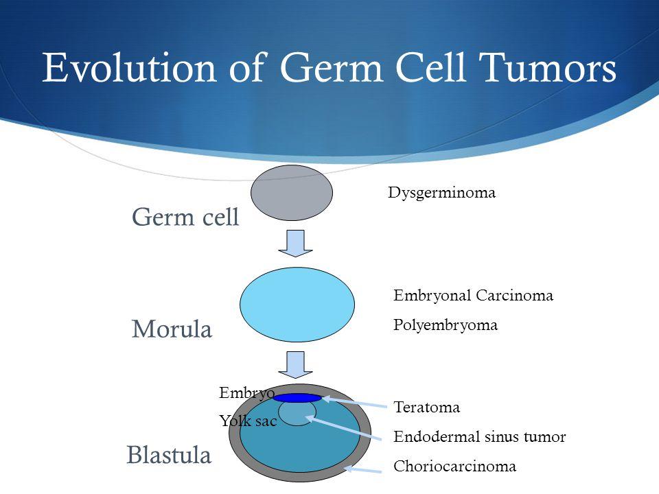 Dysgerminoma Embryonal Carcinoma Polyembryoma Teratoma Endodermal sinus tumor Choriocarcinoma Germ cell Morula Blastula Embryo Yolk sac Evolution of G
