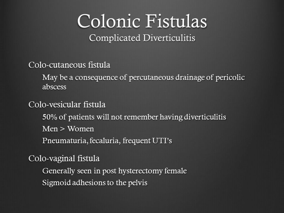 Colonic Fistulas Complicated Diverticulitis Colo-cutaneous fistula May be a consequence of percutaneous drainage of pericolic abscess Colo-vesicular fistula 50% of patients will not remember having diverticulitis Men > Women Pneumaturia, fecaluria, frequent UTI's Colo-vaginal fistula Generally seen in post hysterectomy female Sigmoid adhesions to the pelvis