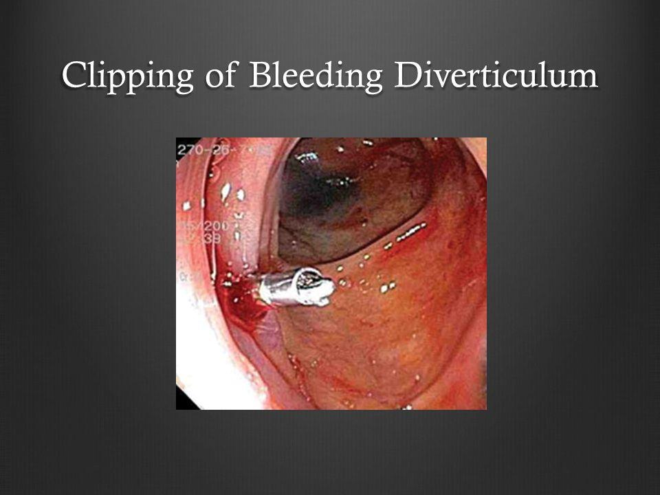 Clipping of Bleeding Diverticulum