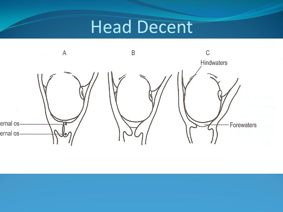Head Decent