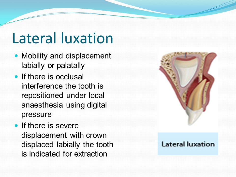 Lateral luxation Mobility and displacement labially or palatally If there is occlusal interference the tooth is repositioned under local anaesthesia using digital pressure If there is severe displacement with crown displaced labially the tooth is indicated for extraction