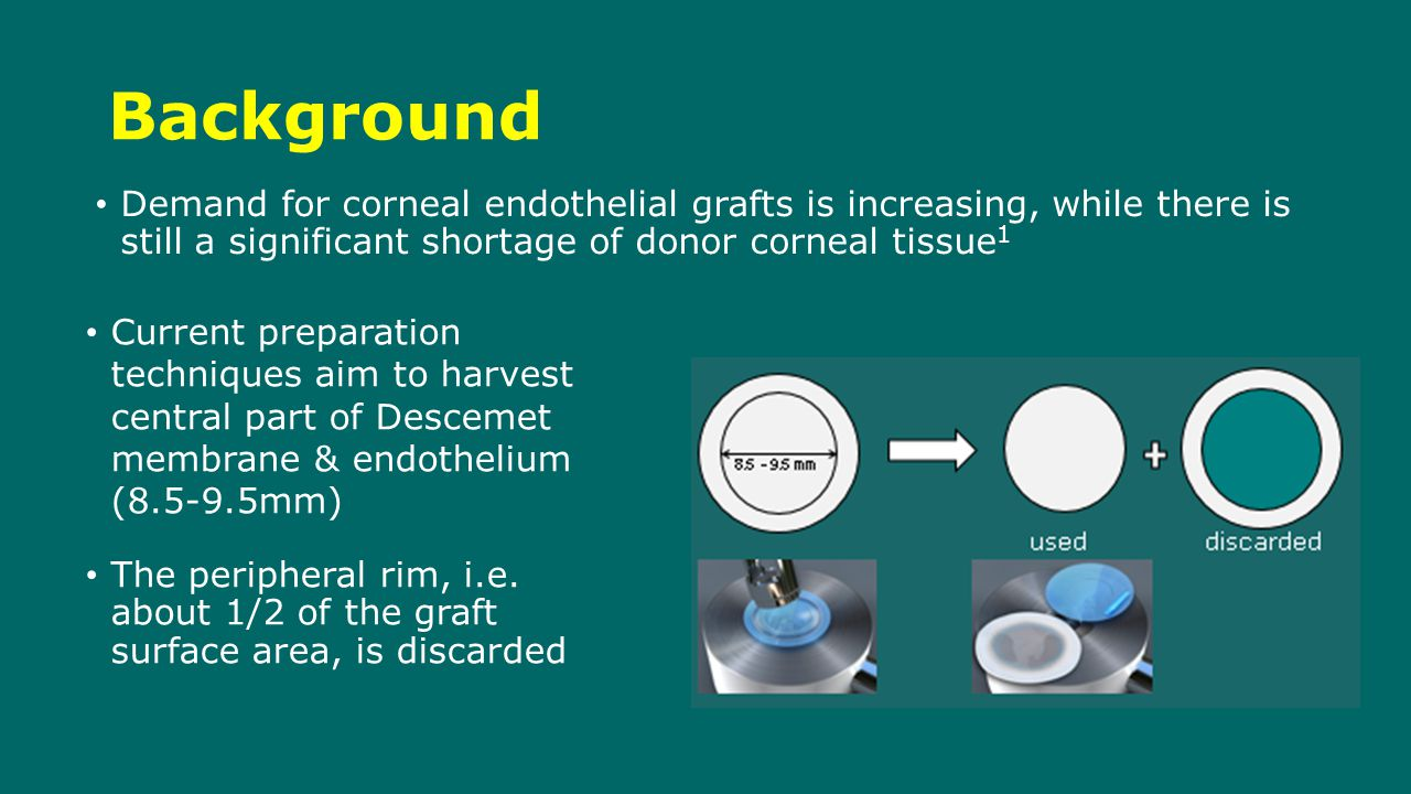 Background Current preparation techniques aim to harvest central part of Descemet membrane & endothelium (8.5-9.5mm) The peripheral rim, i.e.