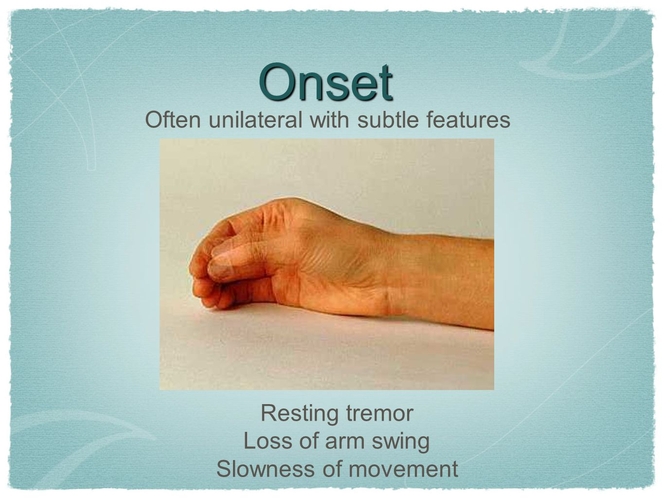 Onset Resting tremor Loss of arm swing Slowness of movement Often unilateral with subtle features
