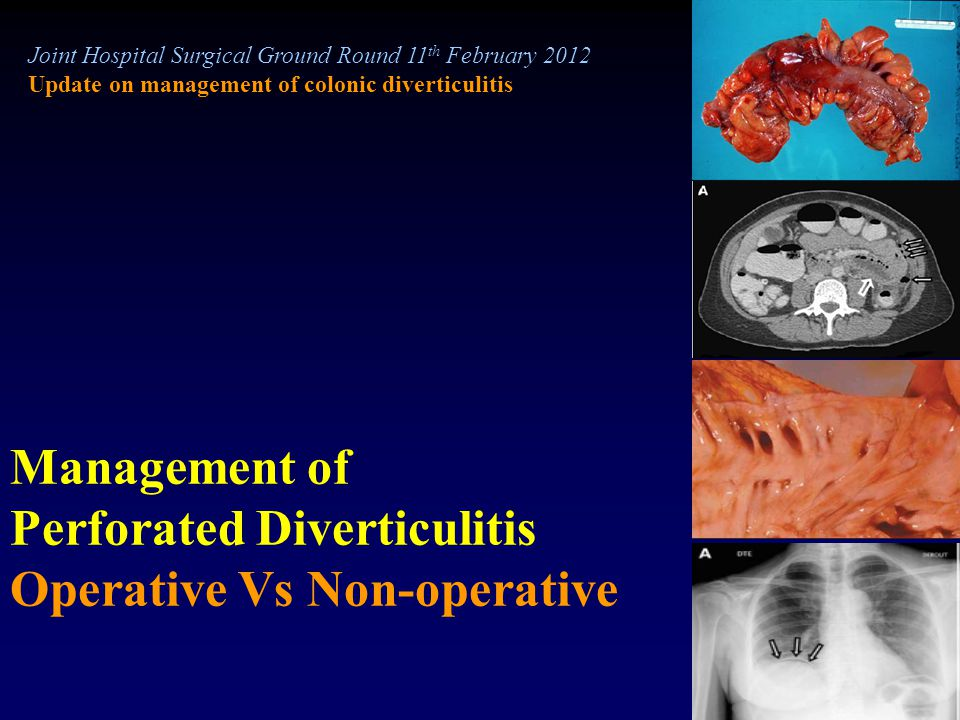 Joint Hospital Surgical Ground Round 11 th February 2012 Update on management of colonic diverticulitis Management of Perforated Diverticulitis Operat