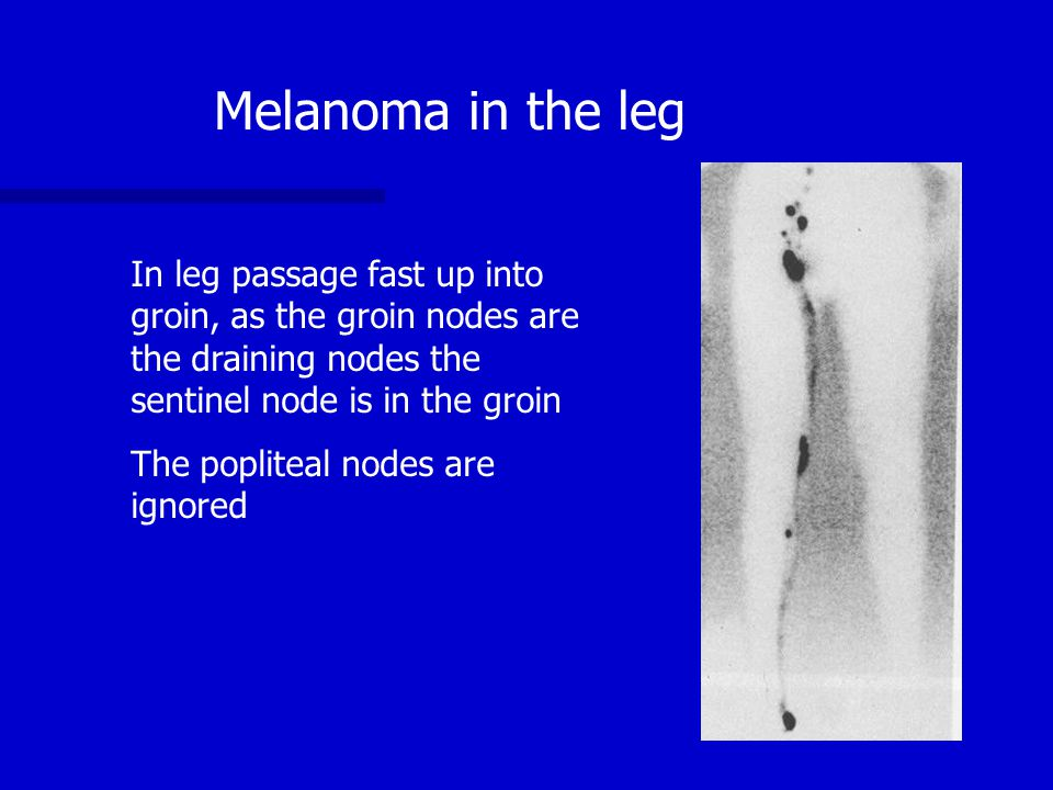 Melanoma in the leg In leg passage fast up into groin, as the groin nodes are the draining nodes the sentinel node is in the groin The popliteal nodes