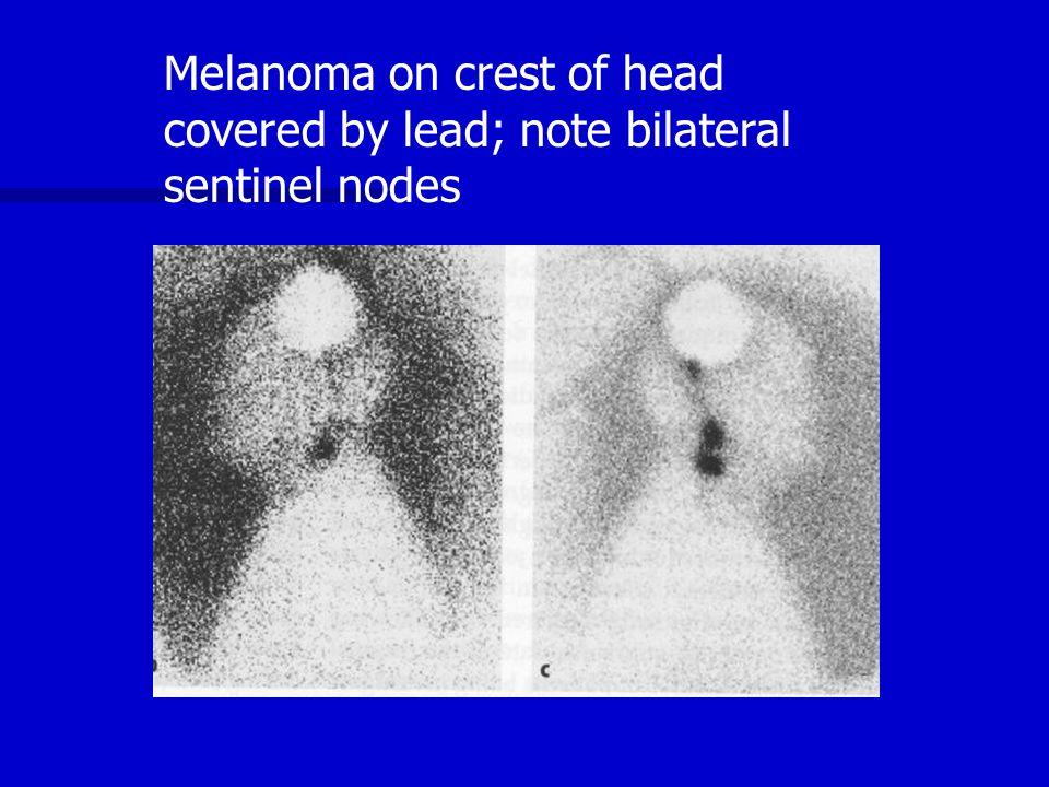 Melanoma on crest of head covered by lead; note bilateral sentinel nodes