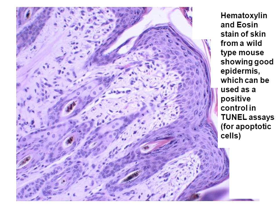 Hematoxylin and Eosin stain of skin from a wild type mouse showing good epidermis, which can be used as a positive control in TUNEL assays (for apoptotic cells)