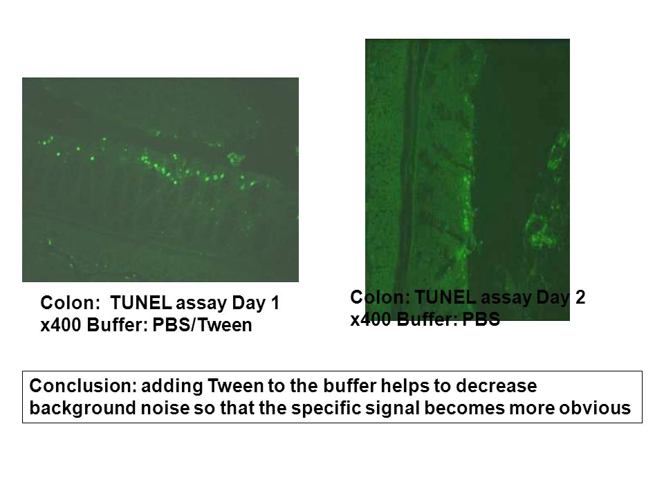 Colon: TUNEL assay Day 1 x400 Buffer: PBS/Tween Colon: TUNEL assay Day 2 x400 Buffer: PBS Conclusion: adding Tween to the buffer helps to decrease background noise so that the specific signal becomes more obvious