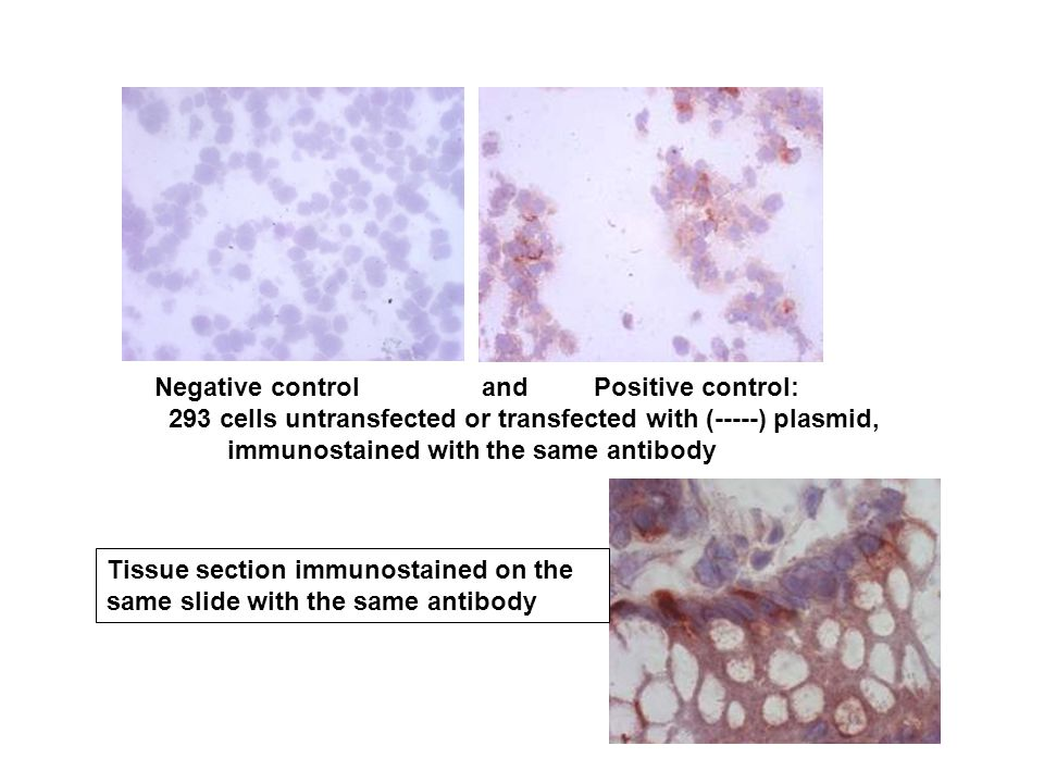 Negative control and Positive control: 293 cells untransfected or transfected with (-----) plasmid, immunostained with the same antibody Tissue section immunostained on the same slide with the same antibody