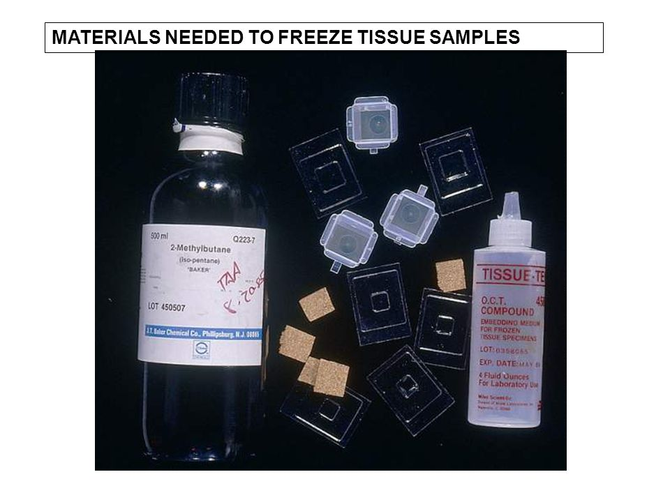 MATERIALS NEEDED TO FREEZE TISSUE SAMPLES