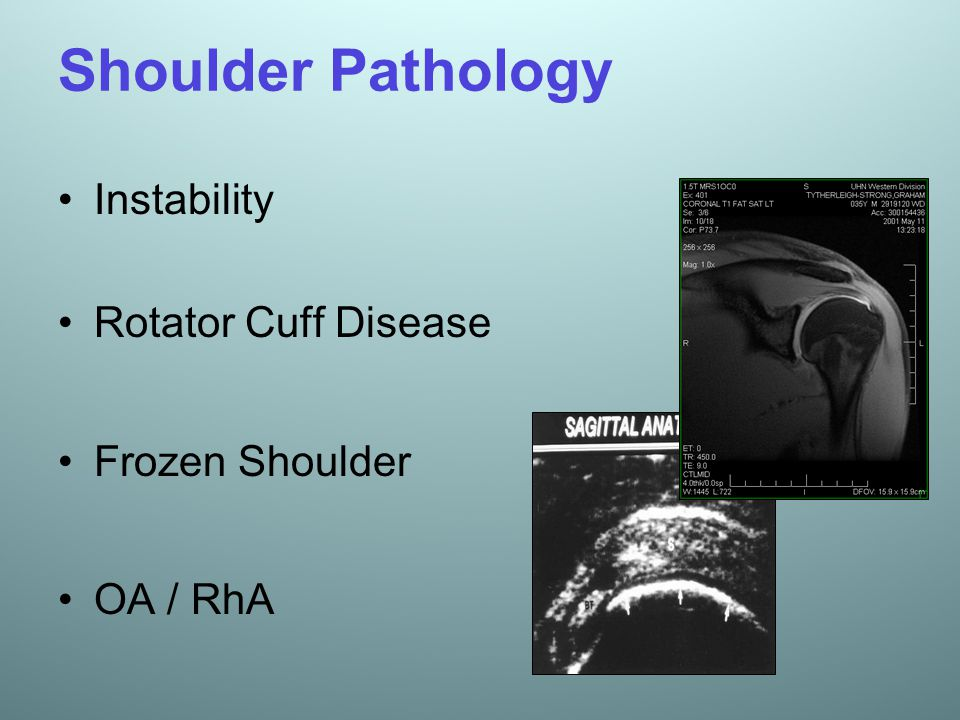 Shoulder Pathology Instability Rotator Cuff Disease Frozen Shoulder OA / RhA