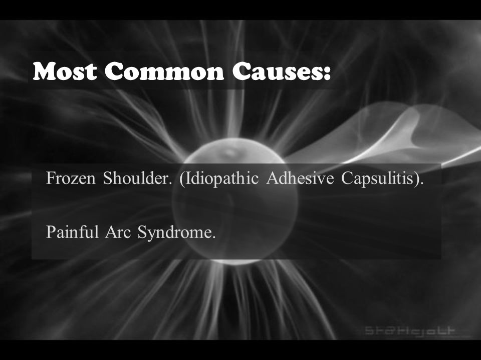 Most Common Causes: Frozen Shoulder. (Idiopathic Adhesive Capsulitis). Painful Arc Syndrome.
