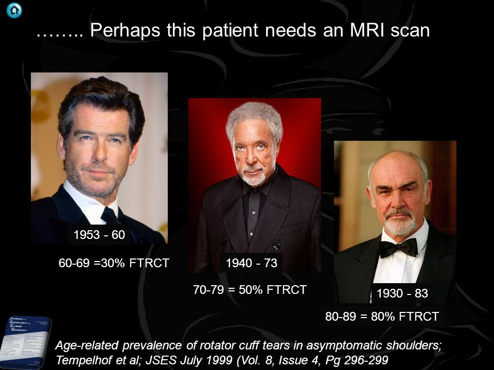 …….. Perhaps this patient needs an MRI scan 60-69 =30% FTRCT 70-79 = 50% FTRCT 80-89 = 80% FTRCT 1930 - 83 Age-related prevalence of rotator cuff tear