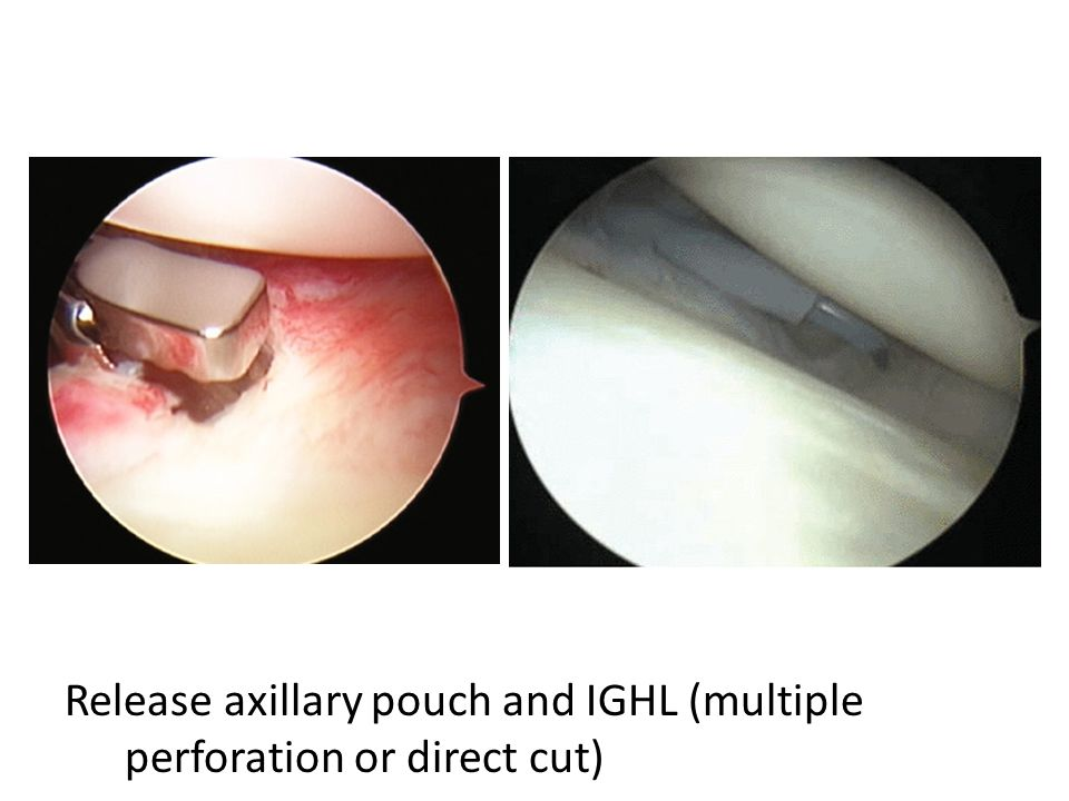 Release axillary pouch and IGHL (multiple perforation or direct cut)