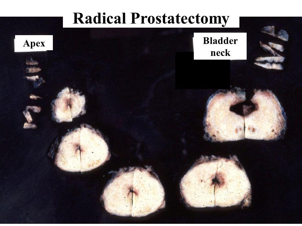 Apex Bladder neck Radical Prostatectomy