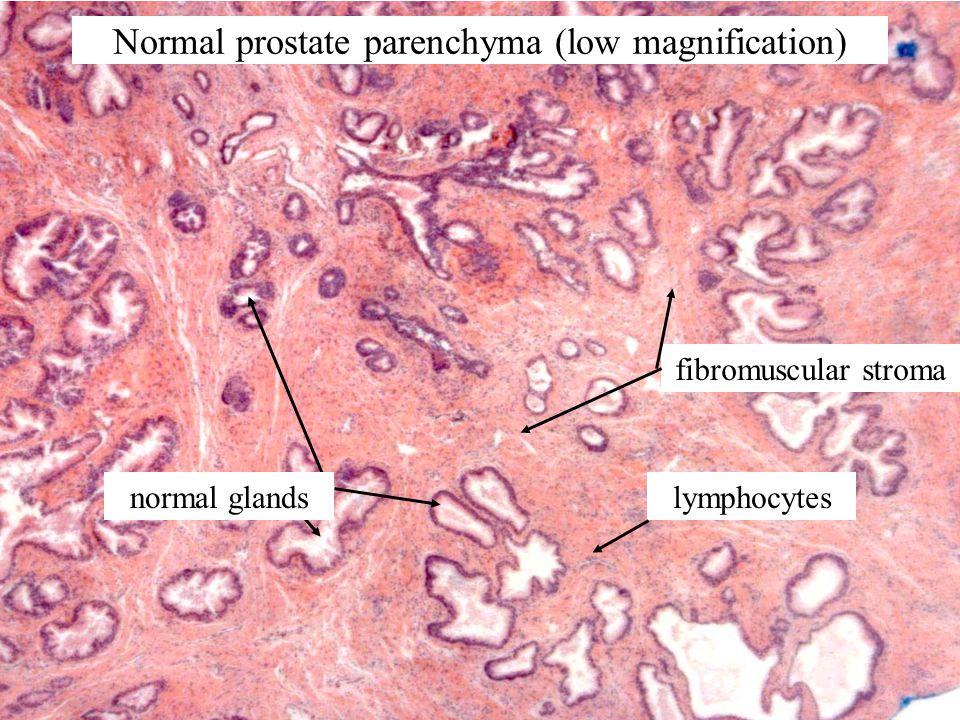 lymphocytes fibromuscular stroma normal glands Normal prostate parenchyma (low magnification)