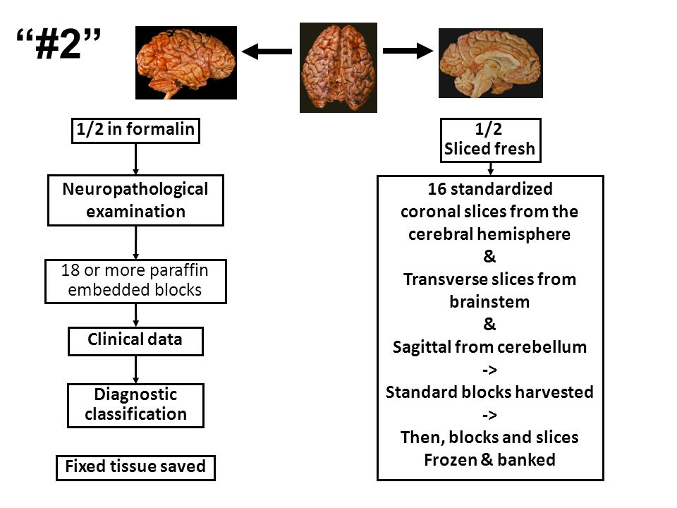 1/2 in formalin1/2 Sliced fresh 18 or more paraffin embedded blocks Fixed tissue saved Diagnostic classification Neuropathological examination Clinical data 16 standardized coronal slices from the cerebral hemisphere & Transverse slices from brainstem & Sagittal from cerebellum -> Standard blocks harvested -> Then, blocks and slices Frozen & banked #2