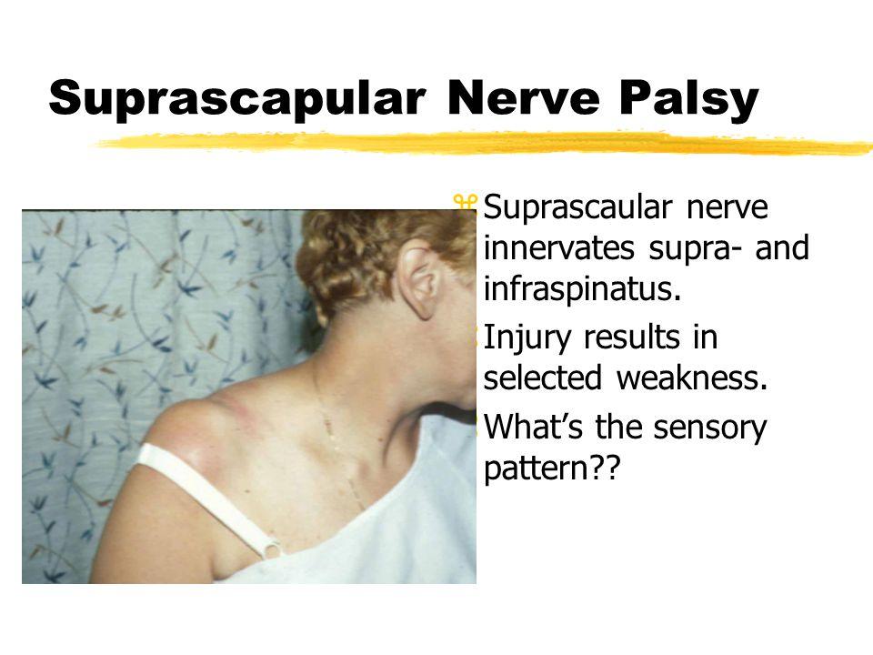Suprascapular Nerve Palsy z Suprascaular nerve innervates supra- and infraspinatus.
