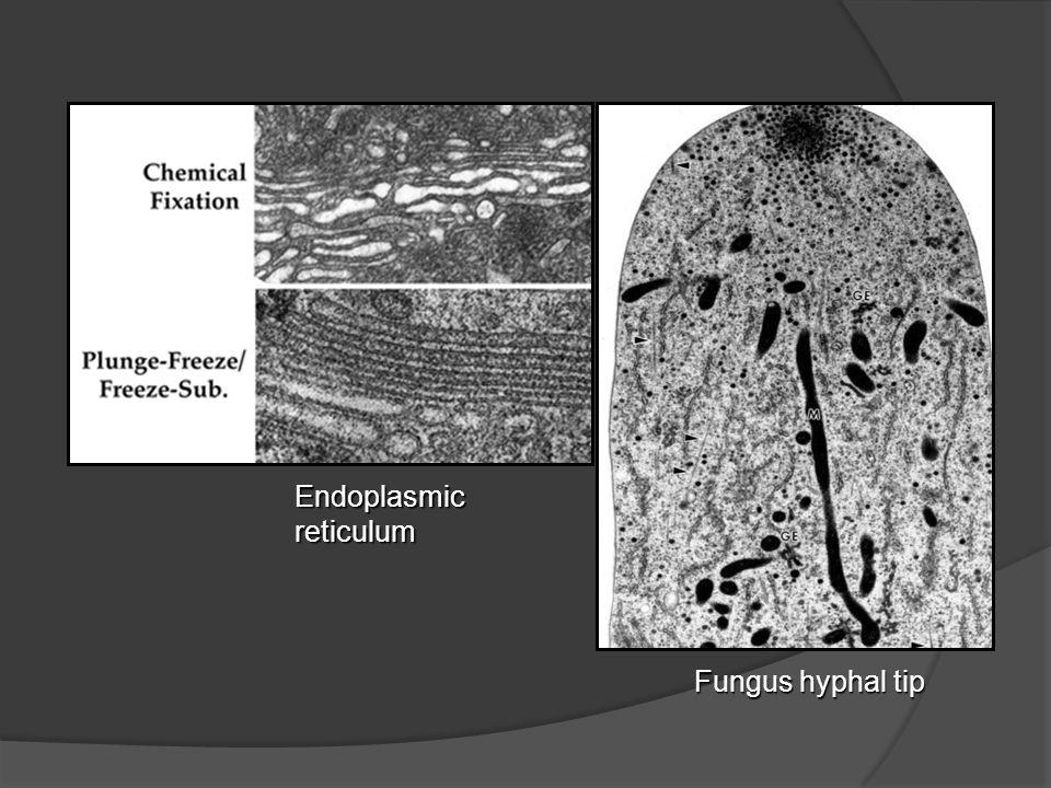 Endoplasmicreticulum Fungus hyphal tip