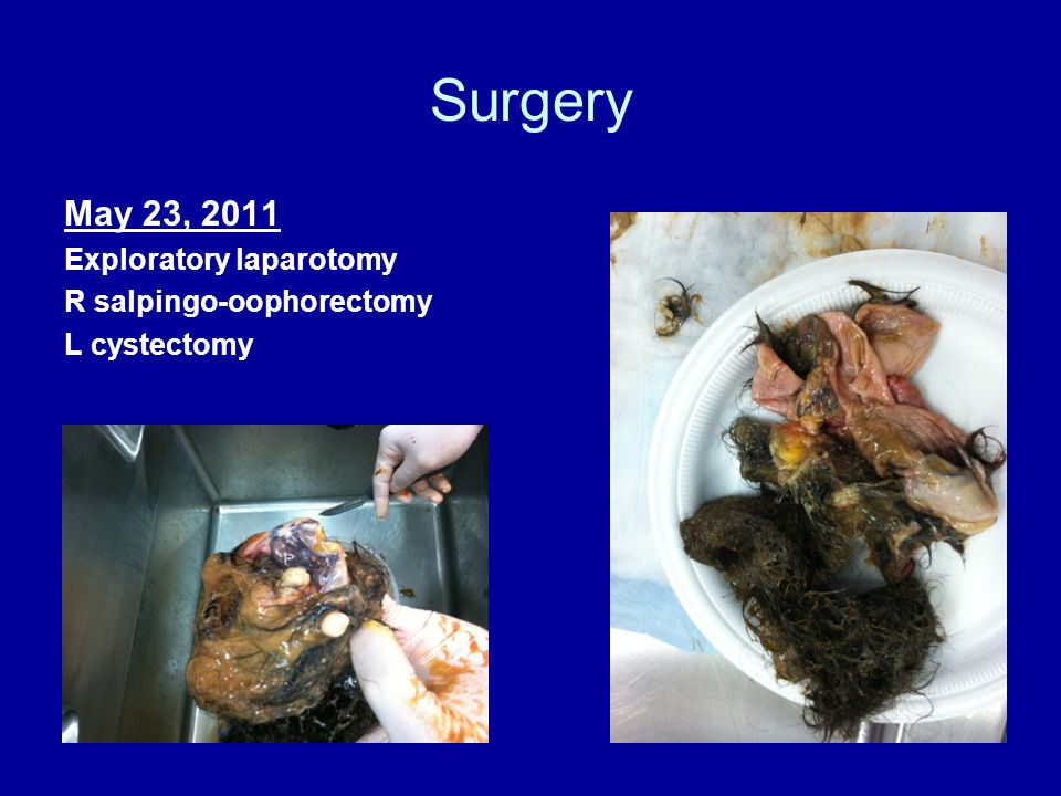 Surgery May 23, 2011 Exploratory laparotomy R salpingo-oophorectomy L cystectomy