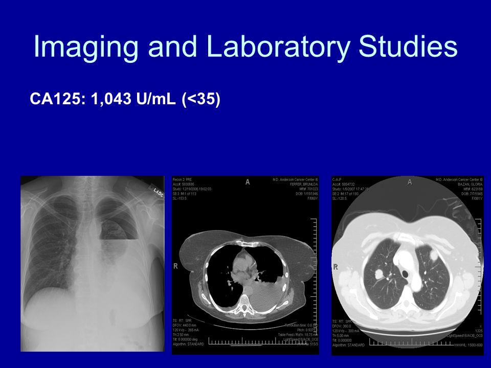 Imaging and Laboratory Studies CA125: 1,043 U/mL (<35)