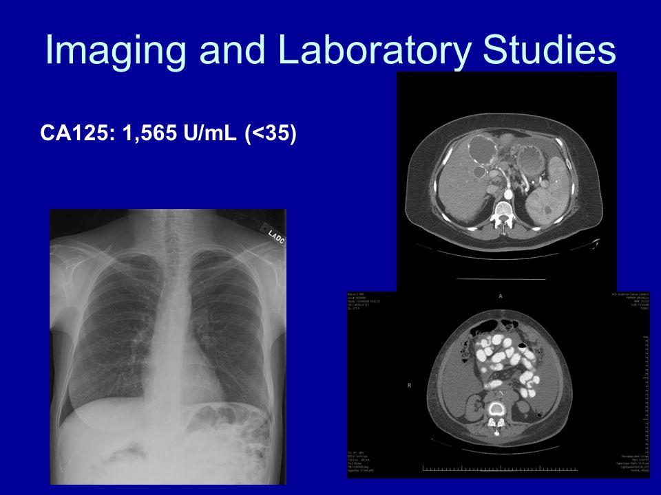Imaging and Laboratory Studies CA125: 1,565 U/mL (<35)