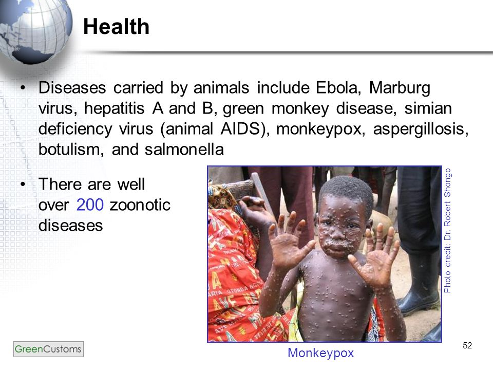 52 Health Diseases carried by animals include Ebola, Marburg virus, hepatitis A and B, green monkey disease, simian deficiency virus (animal AIDS), monkeypox, aspergillosis, botulism, and salmonella There are well over 200 zoonotic diseases Photo credit: Dr.