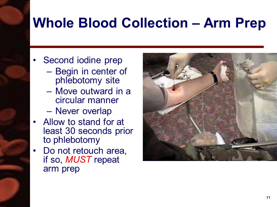11 Whole Blood Collection – Arm Prep Second iodine prep –Begin in center of phlebotomy site –Move outward in a circular manner –Never overlap Allow to stand for at least 30 seconds prior to phlebotomy Do not retouch area, if so, MUST repeat arm prep