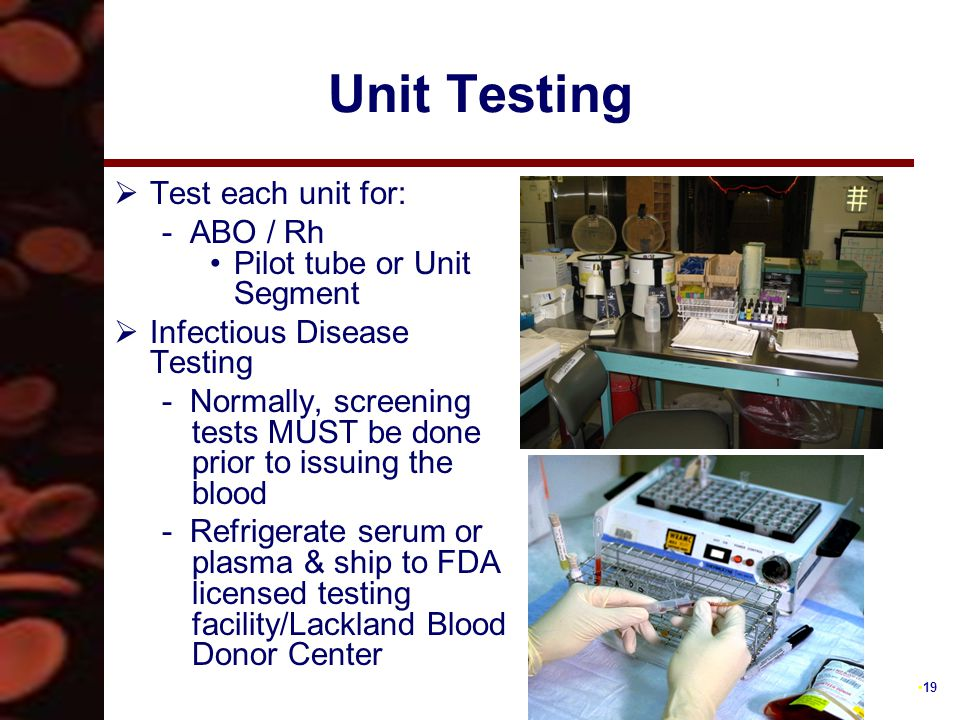 19 Unit Testing  Test each unit for: - ABO / Rh Pilot tube or Unit Segment  Infectious Disease Testing - Normally, screening tests MUST be done prior to issuing the blood - Refrigerate serum or plasma & ship to FDA licensed testing facility/Lackland Blood Donor Center