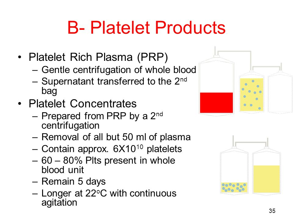 34 Preparation of platelet concentrate RBCsPRP Plasma Platelet concentrate