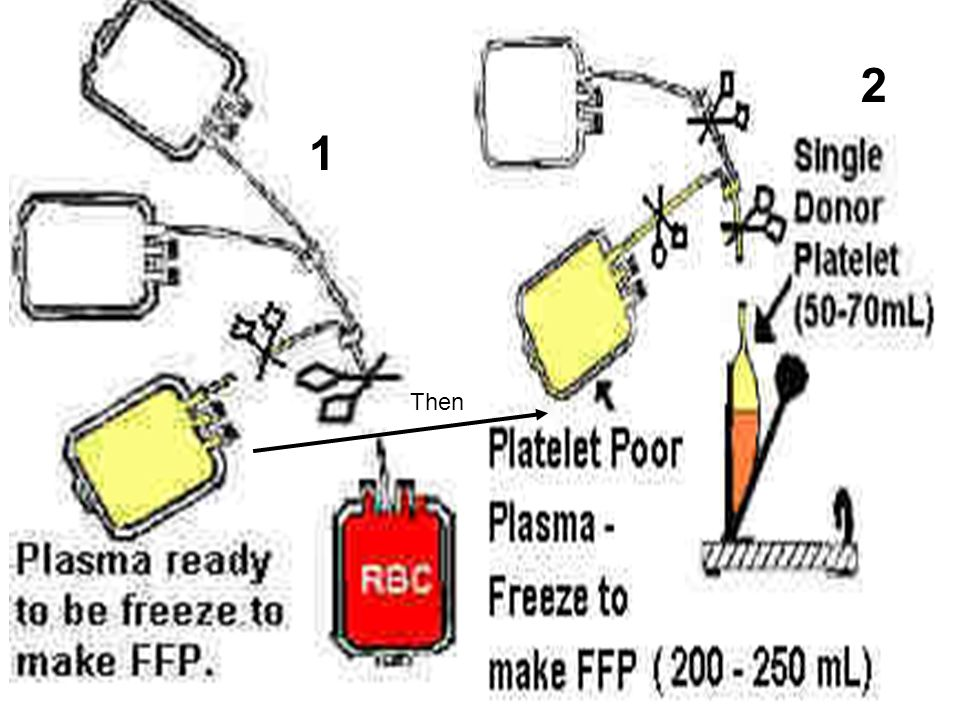 35 B- Platelet Products Platelet Rich Plasma (PRP) –Gentle centrifugation of whole blood –Supernatant transferred to the 2 nd bag Platelet Concentrates –Prepared from PRP by a 2 nd centrifugation –Removal of all but 50 ml of plasma –Contain approx.